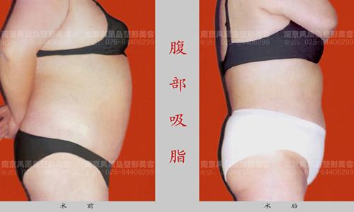 温馨提示:本对比照片来自于南京凤凰岛整形医院