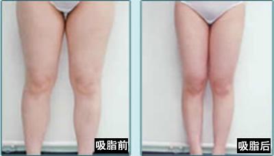腿部吸脂前后对比图