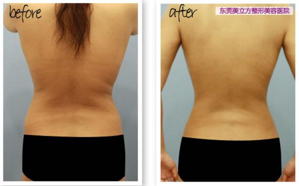 背部吸脂手术对比图