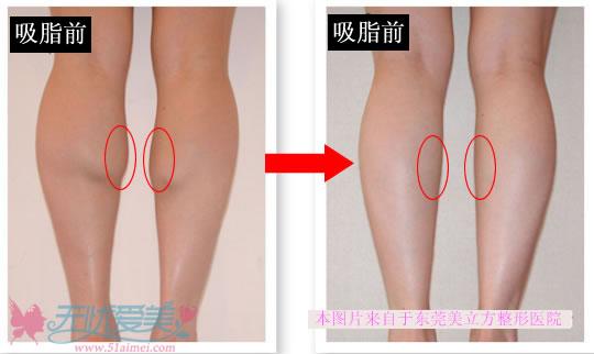 小腿吸脂对比图(东莞)