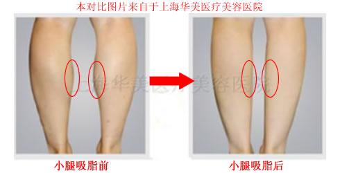 小腿吸脂对比图(上海、福州)