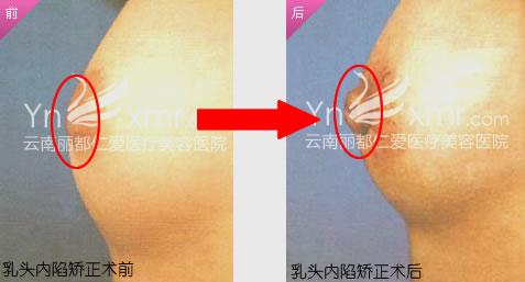 温馨提示:本对比照片来自于云南仁爱整形医院