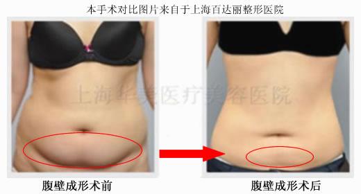 腹壁成形手术对比图