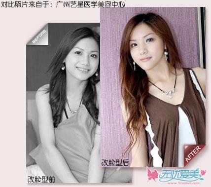 广州面部轮廓整形手术前后对比图片