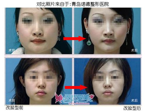 云南、贵阳、青岛面部轮廓整形手术前后对比图片