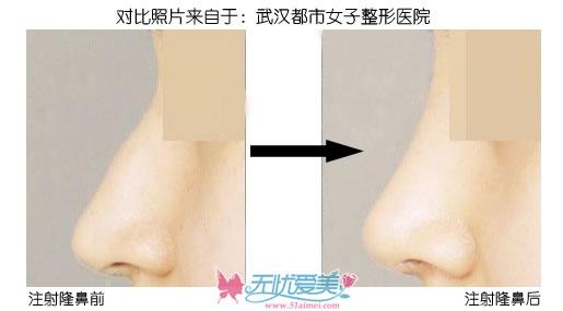 注射隆鼻手术对比图(上海、武汉)