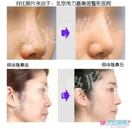 假体隆鼻手术对比图(北京)