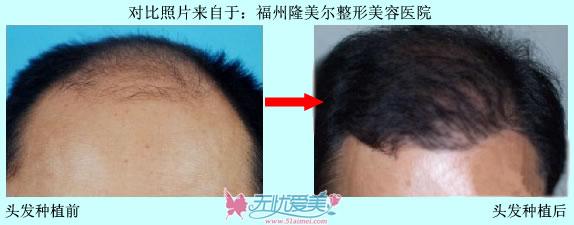 头发种植案例对比图片(福州、合肥)