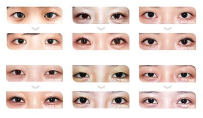韩国眼部整形种类