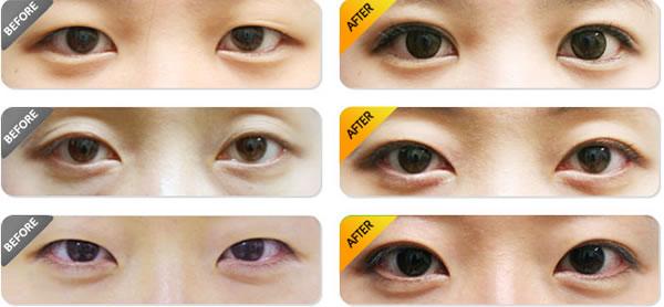 韩式双眼皮对比_韩国JK整形医院双眼皮手术对比图 - 眼部精雕 - 无忧爱美网