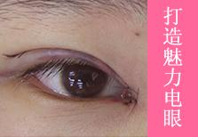 """开眼角+割双眼皮从此""""电眼""""不是梦"""
