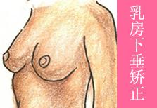 """乳房下垂矫正手术 缩紧""""皮肤乳罩"""""""