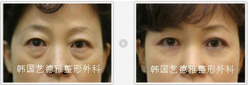 去眼袋手术前后对比图