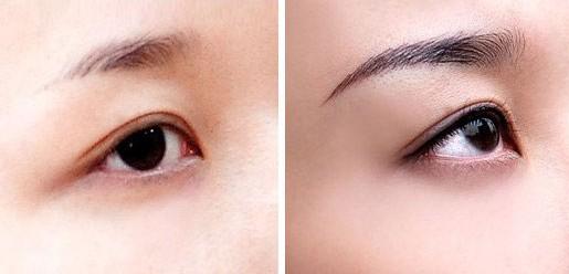 眉毛种植前后对比照