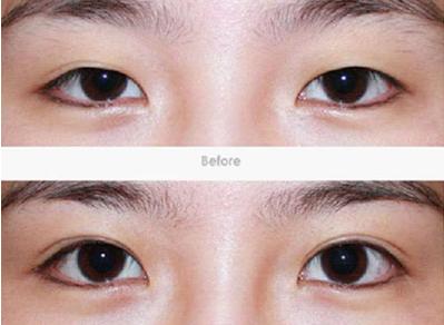 双眼皮手术后多久可以化妆