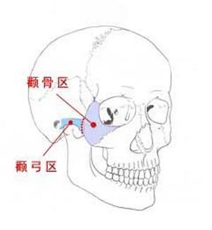 磨颧骨手术