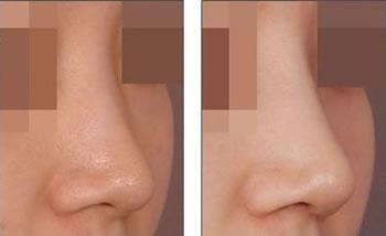 注射玻尿酸隆鼻前后对比图
