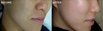 彩光嫩肤手术前后对比图