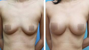 自体脂肪丰胸前后对比图