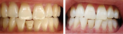 冷光牙齿美白前后对比图