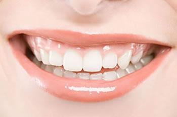 美容冠 牙齿矫正的理想选择
