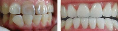 冷光美白牙齿前后对比图