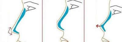 假体隆鼻手术示意图