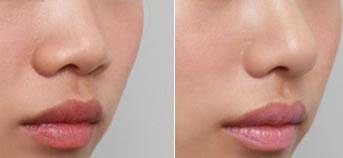 假体隆鼻前后对比图