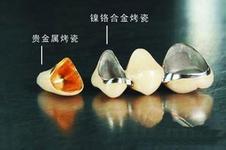 烤瓷牙材料