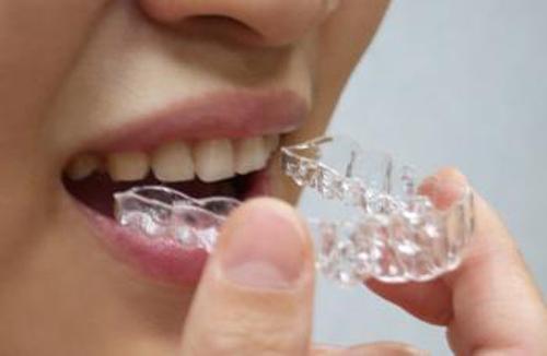 隐形牙齿矫正