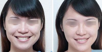 注射瘦脸针前后对比图