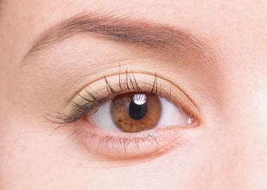 双眼皮整形效果