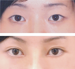 双眼皮手术前后对比图