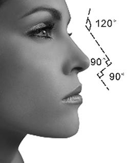 隆鼻整形手术过度会造成哪些后果