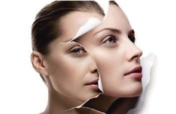 注射玻尿酸除皱 定格肌肤年龄