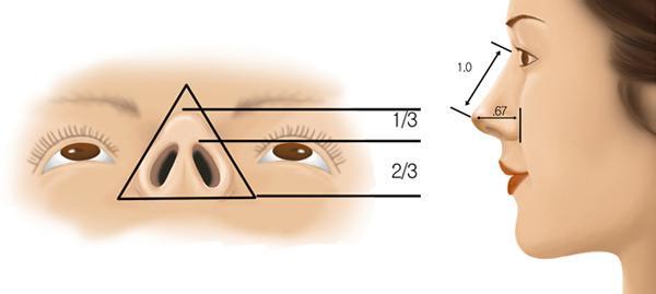 看看自己适合做哪种类型的隆鼻术