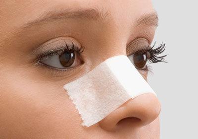 隆鼻术后能尽快消肿的方法有哪些