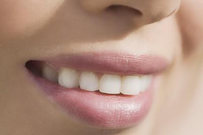 快看看你的牙齿适合做冷光美白吗