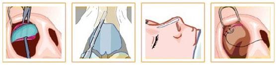 隆鼻整形术 全方位塑造完美鼻子