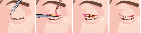 做双眼皮整形手术有没有后遗症,会不会影响视力?