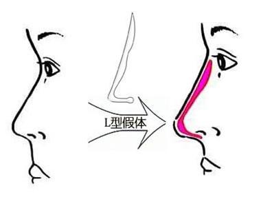 假体隆鼻过程示意图