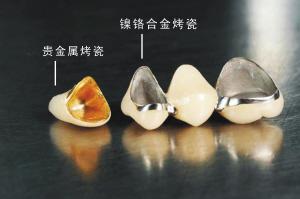 镍铬合金烤瓷牙