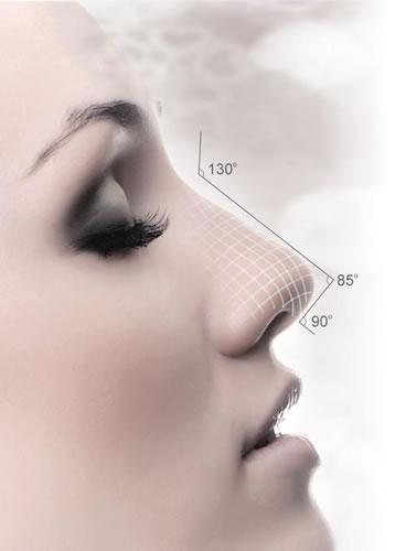 隆鼻手术 塑造精致的鼻子