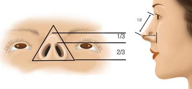 韩式鼻尖整形术 打造精致的美鼻