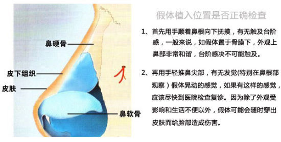 假体隆鼻整形术效果是越高越好吗