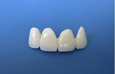 四环素牙的美白治疗技巧你知道吗