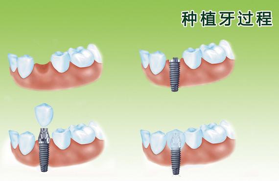 种植牙的流程