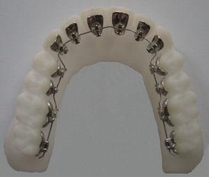 金属托槽牙齿矫正