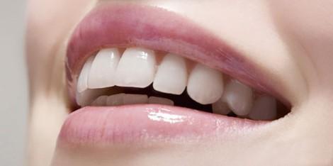 适合做烤瓷牙的牙型
