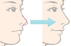 鼻尖整形术需要多久才能恢复
